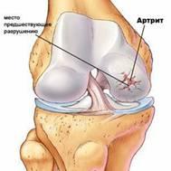 Артроз артрит как преодолеть трудности и вылечить сустав thumbnail